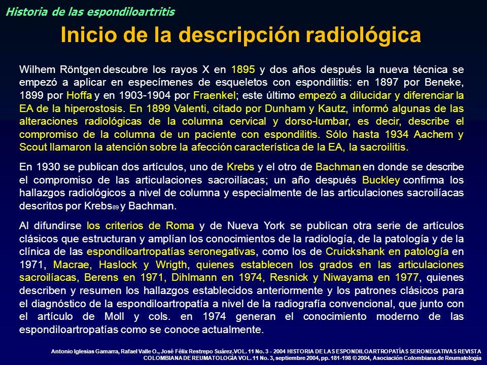 Wilhem Röntgen descubre los rayos X en 1895 y dos años después la nueva técnica se empezó a aplicar en especímenes de esqueletos con espondilitis: en