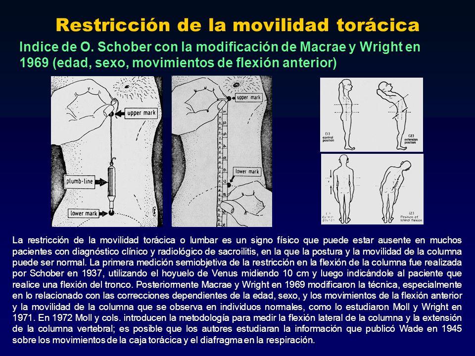 Restricción de la movilidad torácica La restricción de la movilidad torácica o lumbar es un signo físico que puede estar ausente en muchos pacientes c