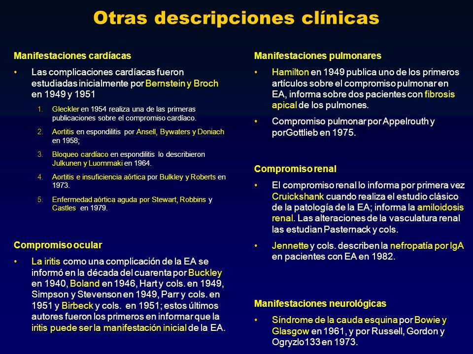 Otras descripciones clínicas Manifestaciones cardíacas Las complicaciones cardíacas fueron estudiadas inicialmente por Bernstein y Broch en 1949 y 195