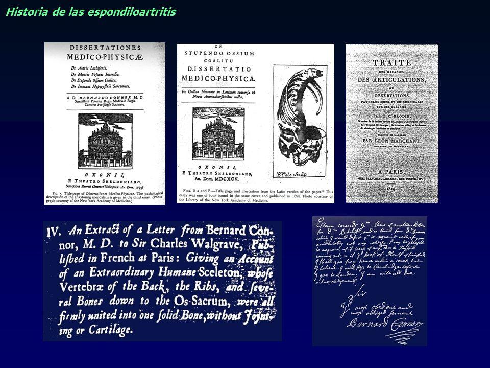 ORIGEN EUROPEO DE LA ESPONDILITIS ANQUILOSANTE HISTORIA Paciente de 31 años procedente de Malta consulto en Londres al Dr Brodie en el año de 1841.