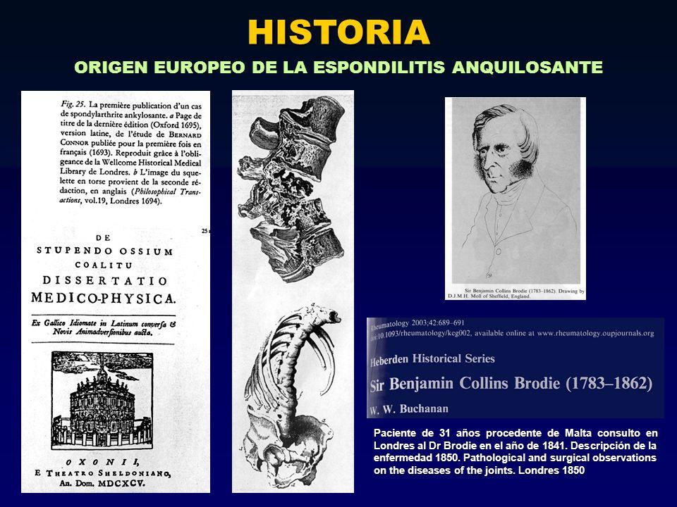ORIGEN EUROPEO DE LA ESPONDILITIS ANQUILOSANTE HISTORIA Paciente de 31 años procedente de Malta consulto en Londres al Dr Brodie en el año de 1841. De