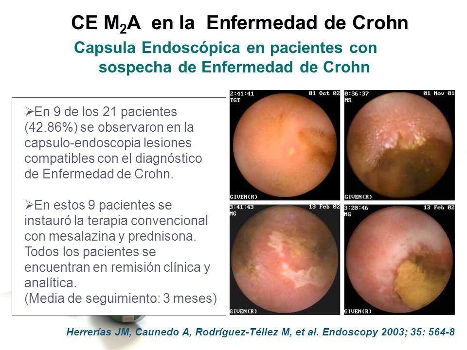 En 9 de los 21 pacientes (42.86%) se observaron en la capsulo-endoscopia lesiones compatibles con el diagnóstico de Enfermedad de Crohn. En estos 9 pa