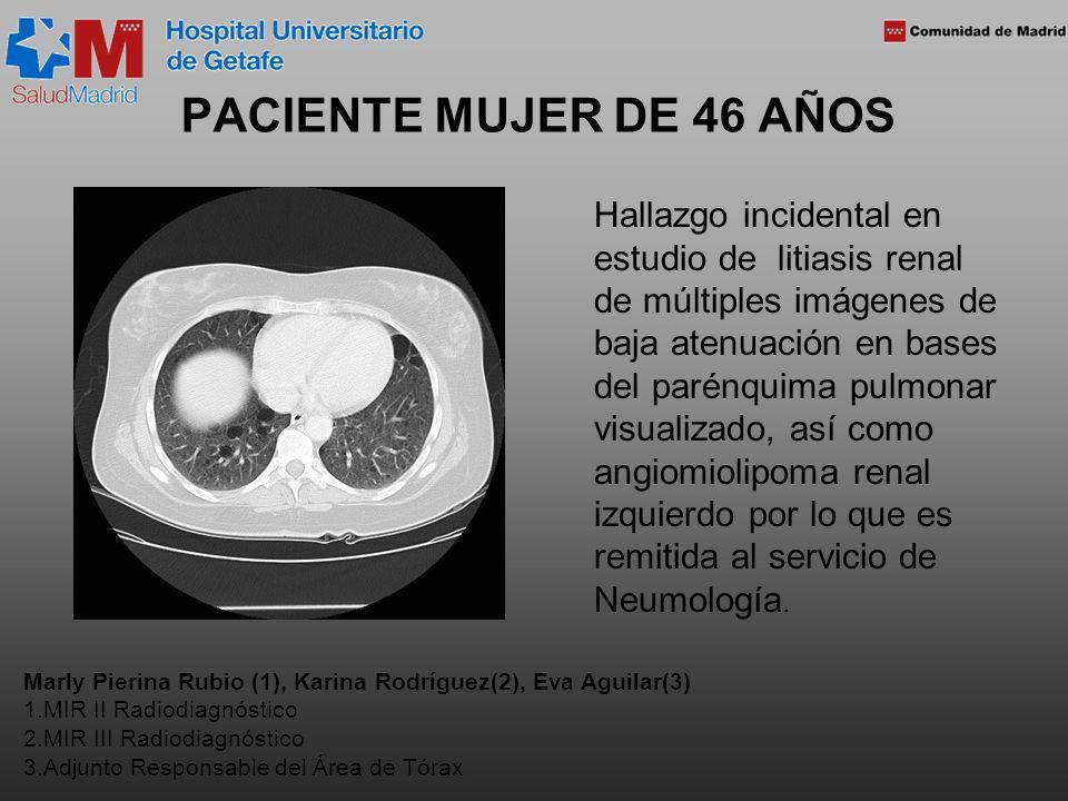 PACIENTE MUJER DE 46 AÑOS Hallazgo incidental en estudio de litiasis renal de múltiples imágenes de baja atenuación en bases del parénquima pulmonar visualizado, así como angiomiolipoma renal izquierdo por lo que es remitida al servicio de Neumología.