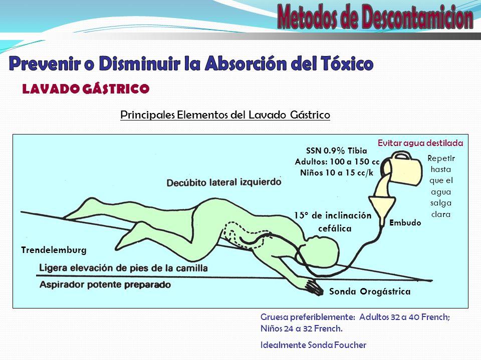 LAVADO GÁSTRICO Principales Elementos del Lavado Gástrico Sonda Orogástrica Trendelemburg 15º de inclinación cefálica Gruesa preferiblemente: Adultos