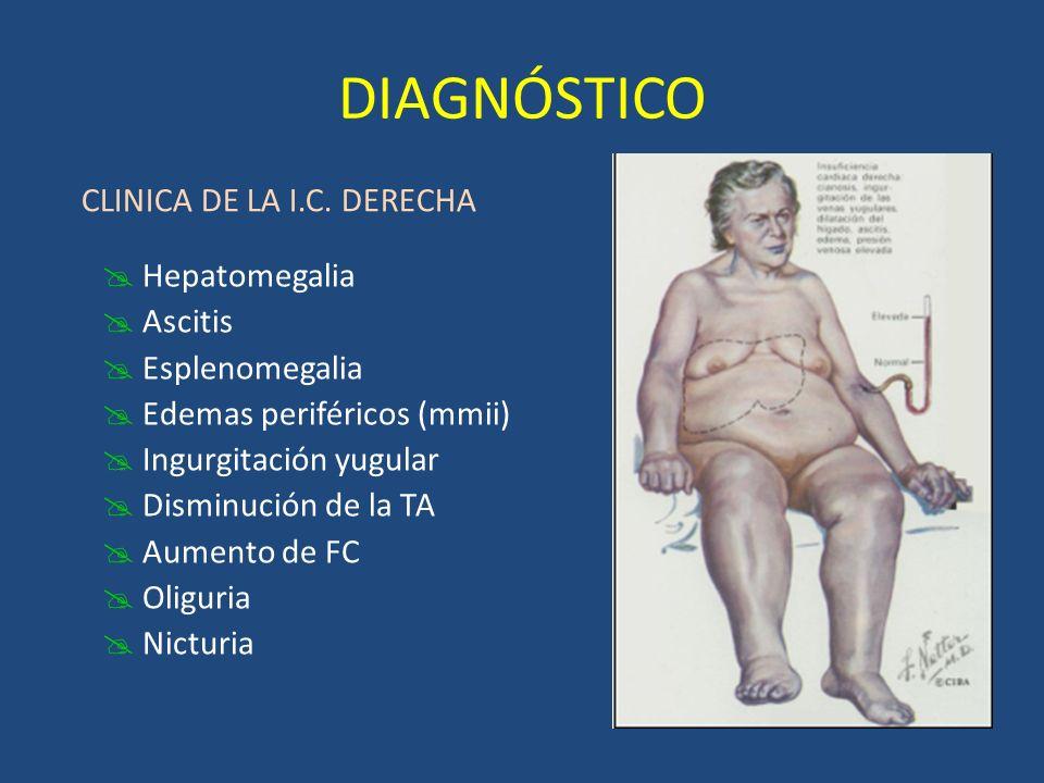 DIAGNÓSTICO CLINICA DE LA I.C. DERECHA Hepatomegalia Ascitis Esplenomegalia Edemas periféricos (mmii) Ingurgitación yugular Disminución de la TA Aumen