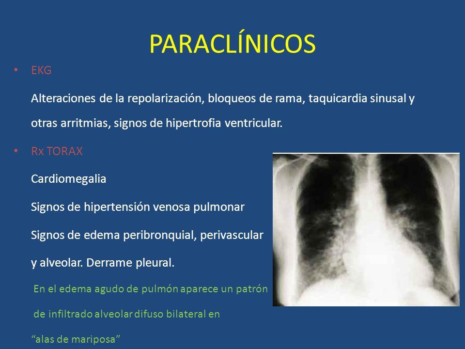 PARACLÍNICOS EKG Alteraciones de la repolarización, bloqueos de rama, taquicardia sinusal y otras arritmias, signos de hipertrofia ventricular. Rx TOR