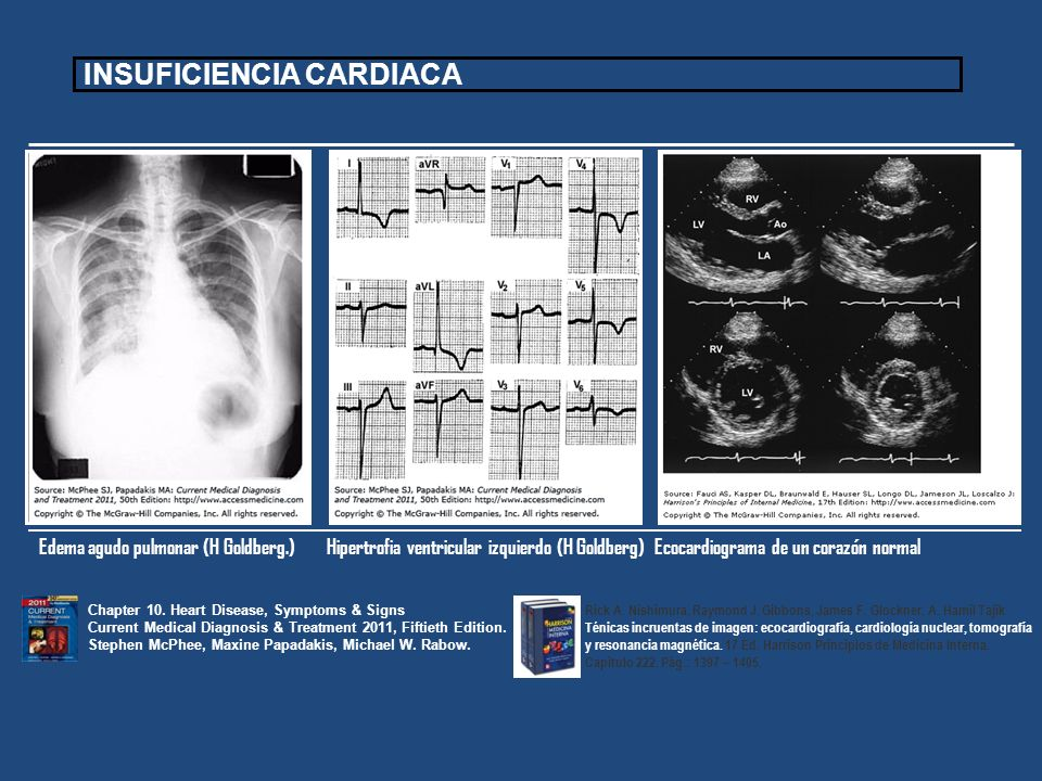 Edema agudo pulmonar (H Goldberg.) Hipertrofia ventricular izquierdo (H Goldberg)Ecocardiograma de un corazón normal Chapter 10. Heart Disease, Sympto