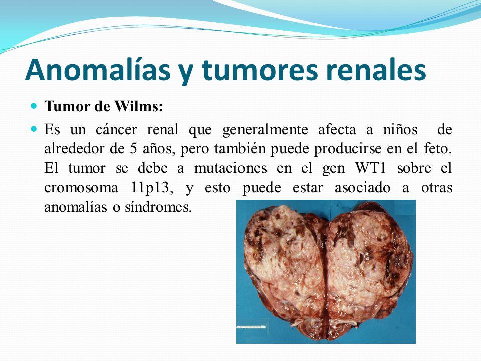 Anomalías y tumores renales Tumor de Wilms: Es un cáncer renal que generalmente afecta a niños de alrededor de 5 años, pero también puede producirse en el feto.