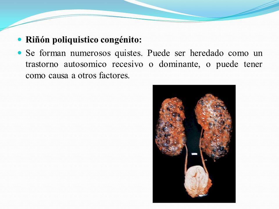 Riñón poliquistico congénito: Se forman numerosos quistes.