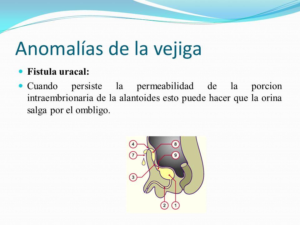 Anomalías de la vejiga Fistula uracal: Cuando persiste la permeabilidad de la porcion intraembrionaria de la alantoides esto puede hacer que la orina salga por el ombligo.
