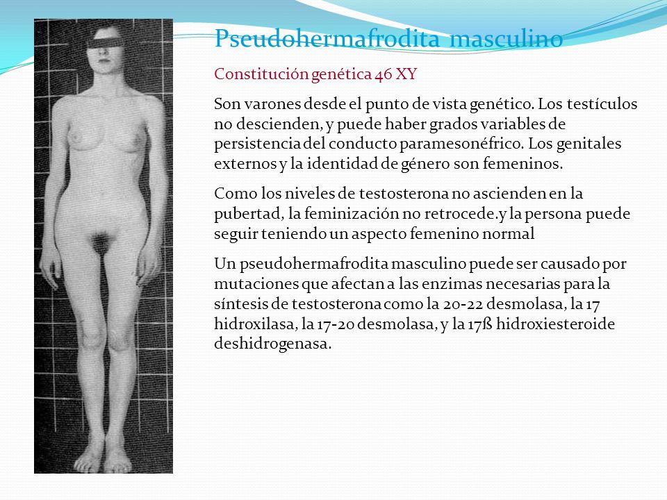 Pseudohermafrodita masculino Constitución genética 46 XY Son varones desde el punto de vista genético.