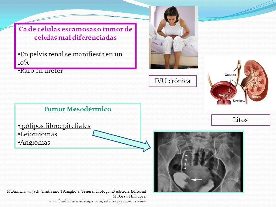Leiomiosarcoma Tumor maligno mesodérmico MÁS COMÚN Originado de un tumor Primario Mecanismo Molecular GENES DE SUPRESION TUMORAL P16, P19 y P53 relacionados con Ca de bajo grado RBI relacionado con Ca de alto grado McAninch, w.