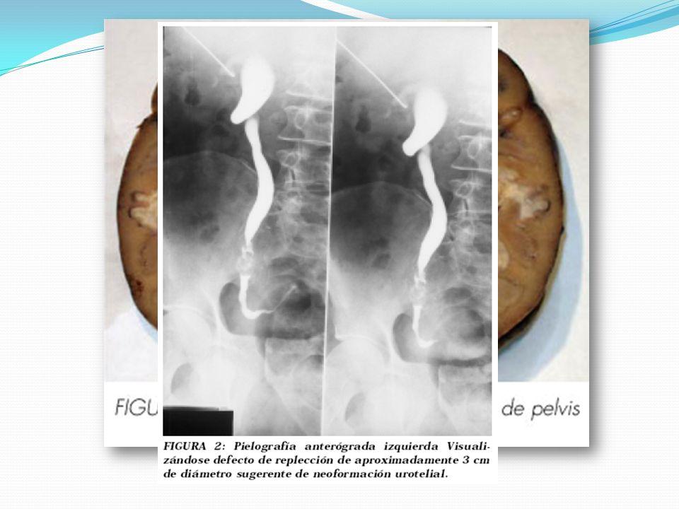 Enfermedad metastásica Perdida de peso Anorexia Adinamia Dolor óseo McAninch W.
