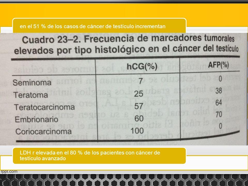 TUMORAFPHCG-BLDH Seminoma clásico: -Aumenta (+) 25% - Seminoma espermatocitico --- Ca embrionarioAumen (+) 75%ta Aumenta (+) 80% - Ca de saco vitelino Aumenta-- Coriocarcinoma-Aumenta (+) 100%x - Teratomas Aumenta (+) 37% Aumenta (+) 25% Ca in situ--- Tumor de celulas de Leydig Producen hormonas sexuales.