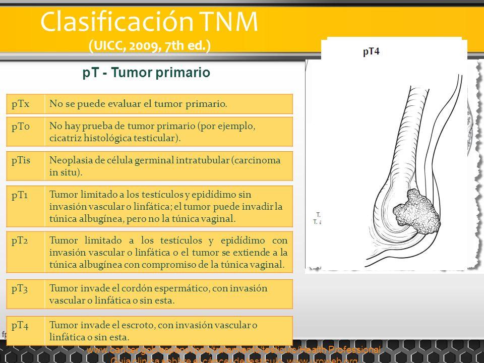 Clasificación TNM (UICC, 2009, 7th ed.) pTxNo se puede evaluar el tumor primario. pT0 No hay prueba de tumor primario (por ejemplo, cicatriz histológi
