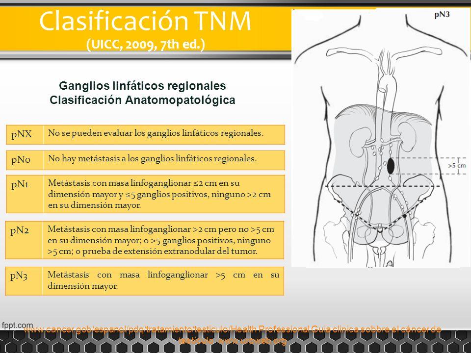 Clasificación TNM (UICC, 2009, 7th ed.) pNX No se pueden evaluar los ganglios linfáticos regionales. pN0 No hay metástasis a los ganglios linfáticos r