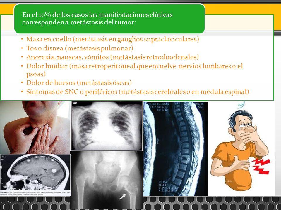 Masa en cuello (metástasis en ganglios supraclaviculares) Tos o disnea (metástasis pulmonar) Anorexia, nauseas, vómitos (metástasis retroduodenales) D
