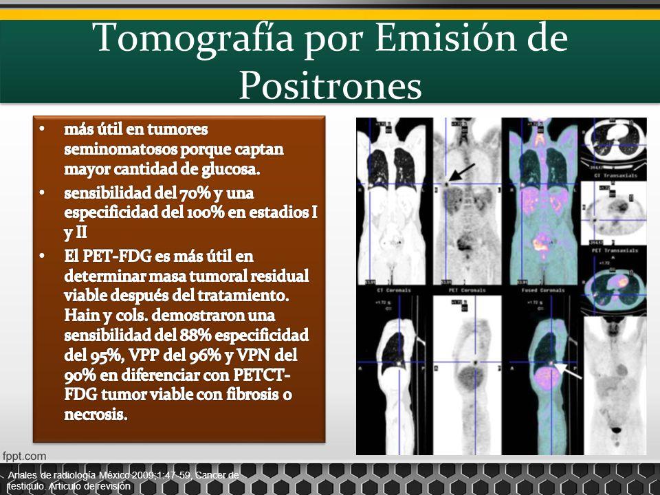Tomografía por Emisión de Positrones Anales de radiología México 2009;1:47-59, Cancer de testiculo. Articulo de revisión
