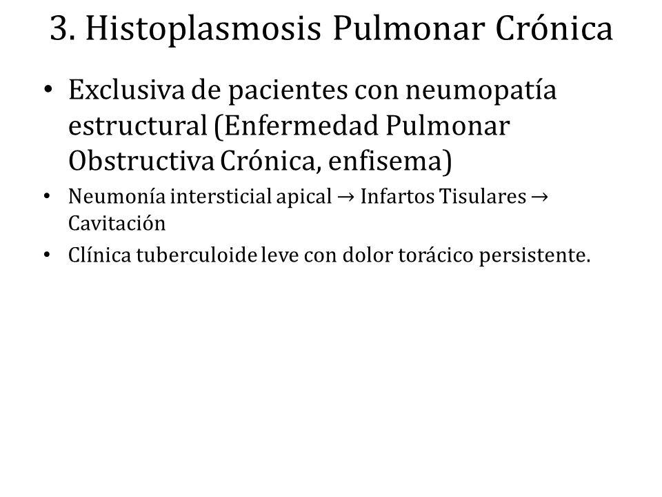 3. Histoplasmosis Pulmonar Crónica Exclusiva de pacientes con neumopatía estructural (Enfermedad Pulmonar Obstructiva Crónica, enfisema) Neumonía inte