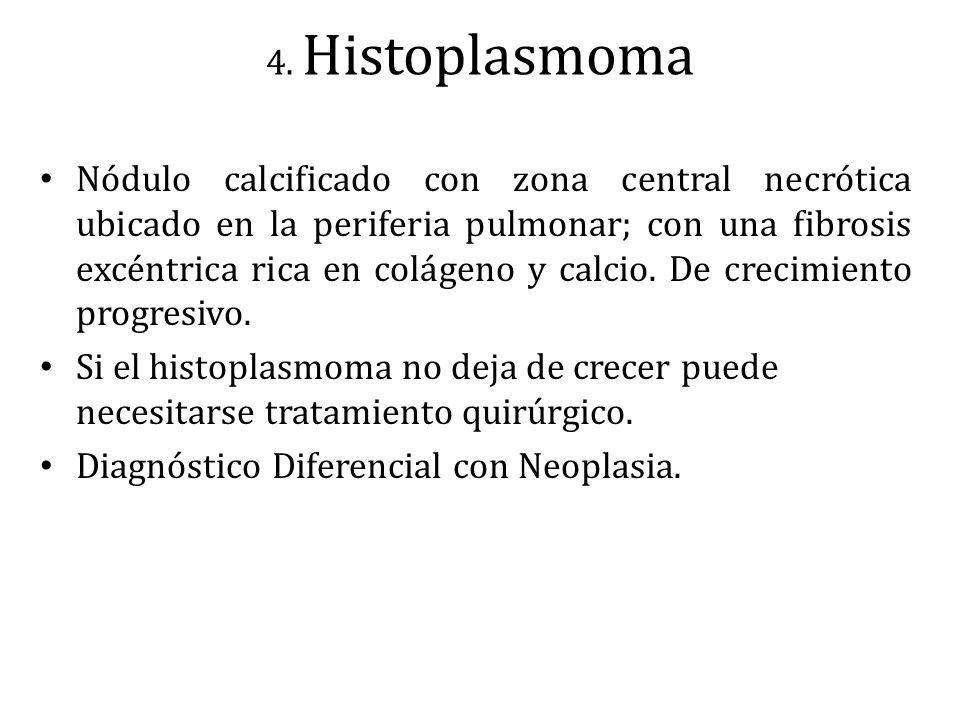 4. Histoplasmoma Nódulo calcificado con zona central necrótica ubicado en la periferia pulmonar; con una fibrosis excéntrica rica en colágeno y calcio
