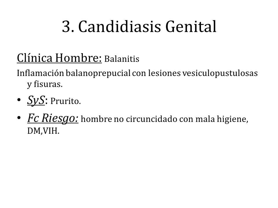 3. Candidiasis Genital Clínica Hombre: Balanitis Inflamación balanoprepucial con lesiones vesiculopustulosas y fisuras. SyS: Prurito. Fc Riesgo: hombr