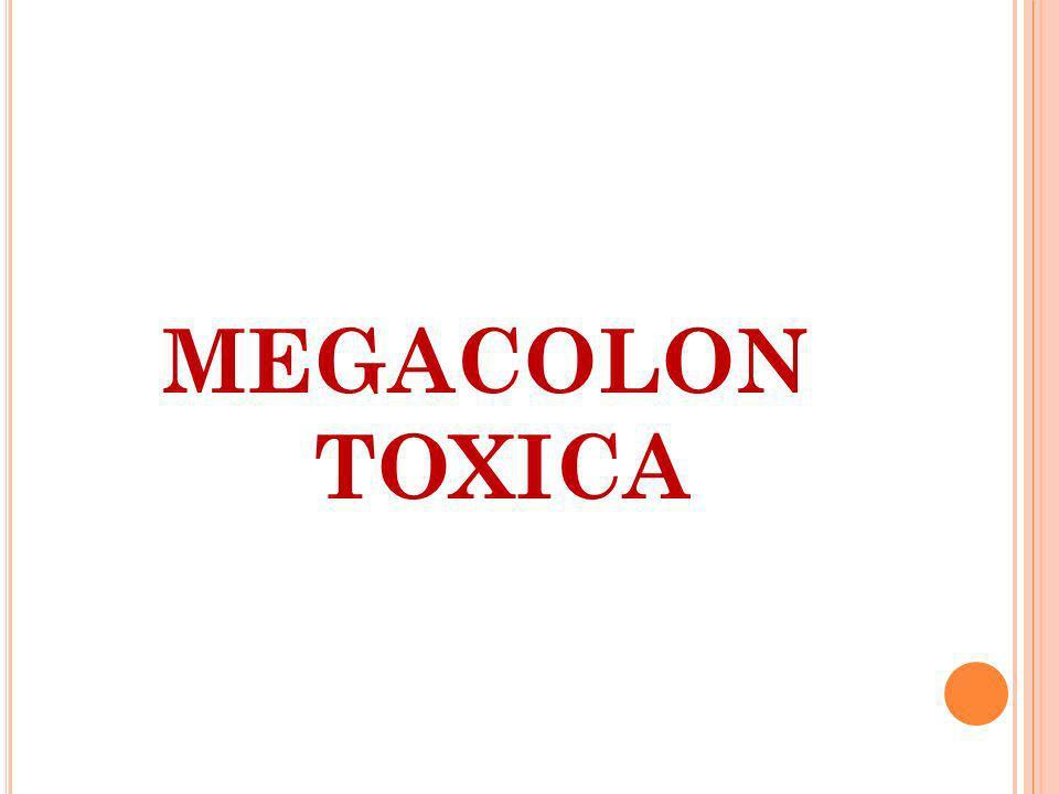 MEGACOLON TOXICA