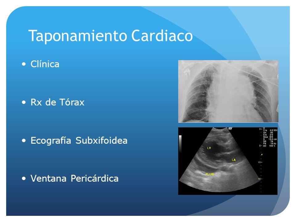 Taponamiento Cardiaco Clínica Rx de Tórax Ecografía Subxifoidea Ventana Pericárdica