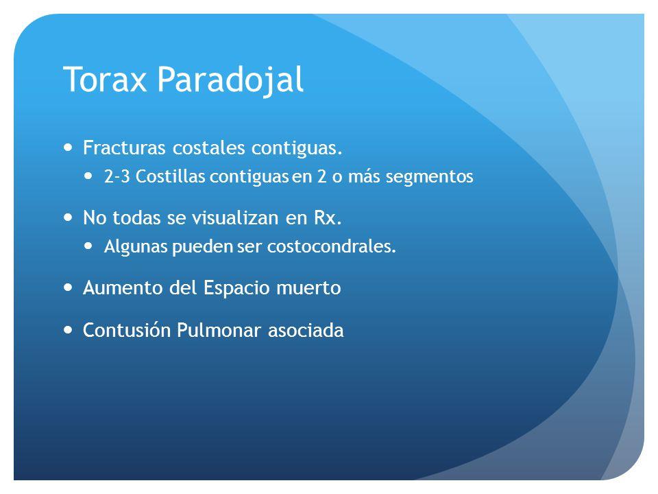 Torax Paradojal Fracturas costales contiguas. 2-3 Costillas contiguas en 2 o más segmentos No todas se visualizan en Rx. Algunas pueden ser costocondr