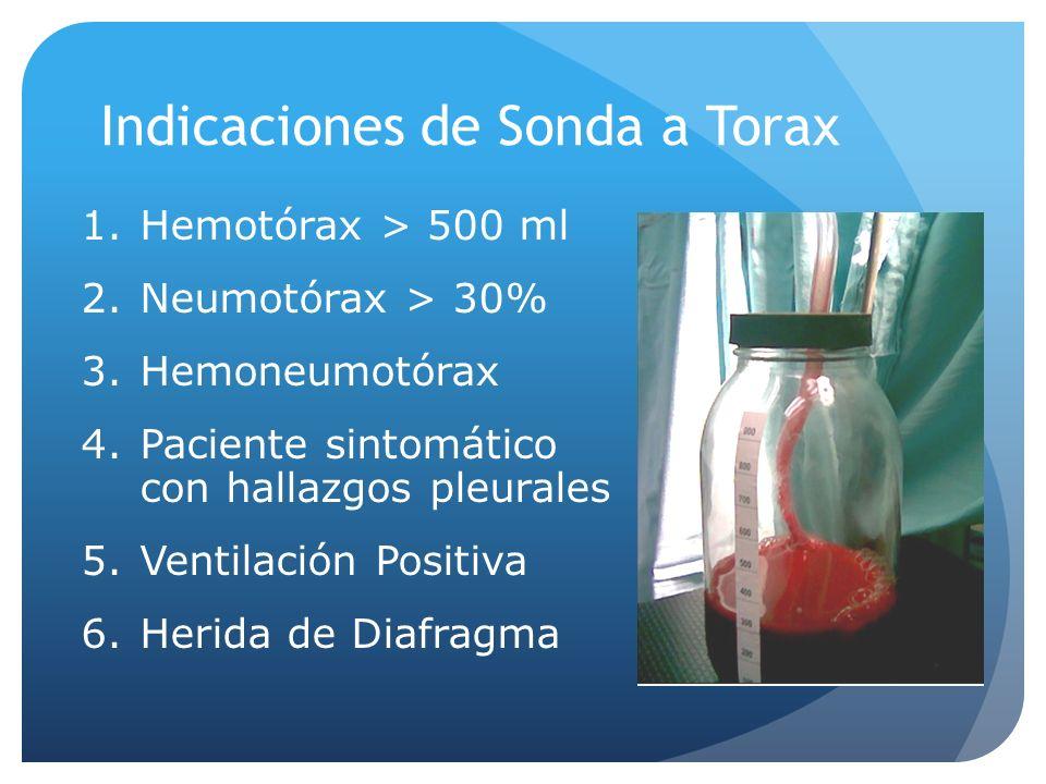 Indicaciones de Sonda a Torax 1.Hemotórax > 500 ml 2.Neumotórax > 30% 3.Hemoneumotórax 4.Paciente sintomático con hallazgos pleurales 5.Ventilación Positiva 6.Herida de Diafragma