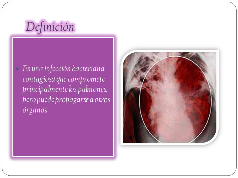 Es una infección bacteriana contagiosa que compromete principalmente los pulmones, pero puede propagarse a otros órganos.