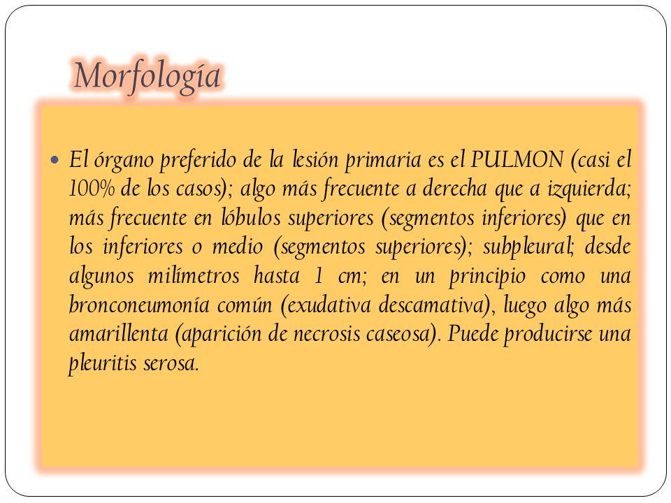 El órgano preferido de la lesión primaria es el PULMON (casi el 100% de los casos); algo más frecuente a derecha que a izquierda; más frecuente en lób
