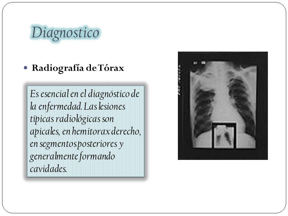 Radiografía de Tórax Es esencial en el diagnóstico de la enfermedad. Las lesiones típicas radiológicas son apicales, en hemitorax derecho, en segmento