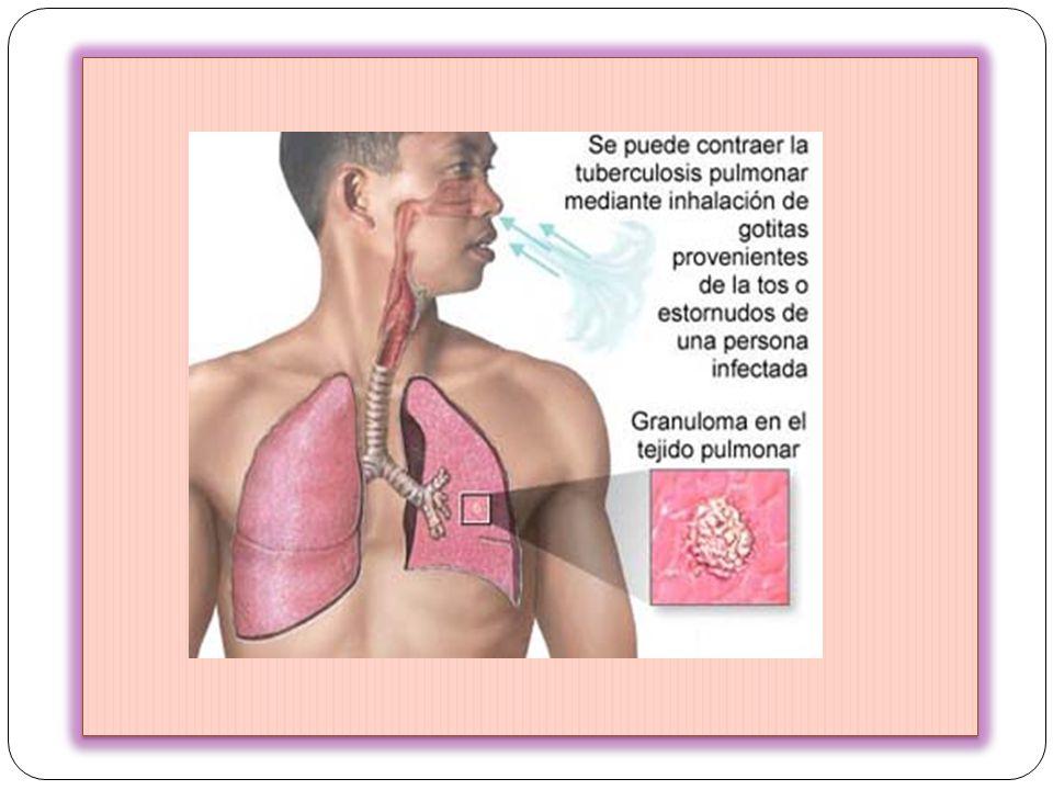 Aparecen múltiples lesiones en diversos órganos Pulmón,Bazo,Hígado, Médula ósea,Riñón, Ganglios linfáticos, Glándulas suprarrenales, Meninges