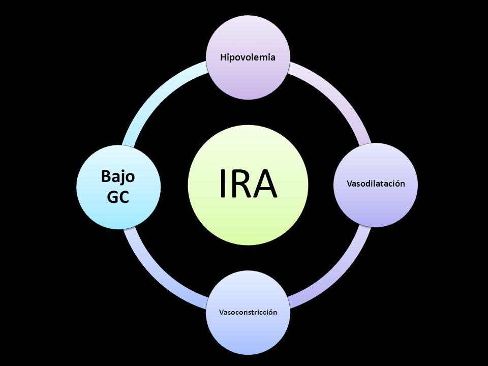 IRA Hipovolemia Vasodilatación Vasoconstricción Bajo GC