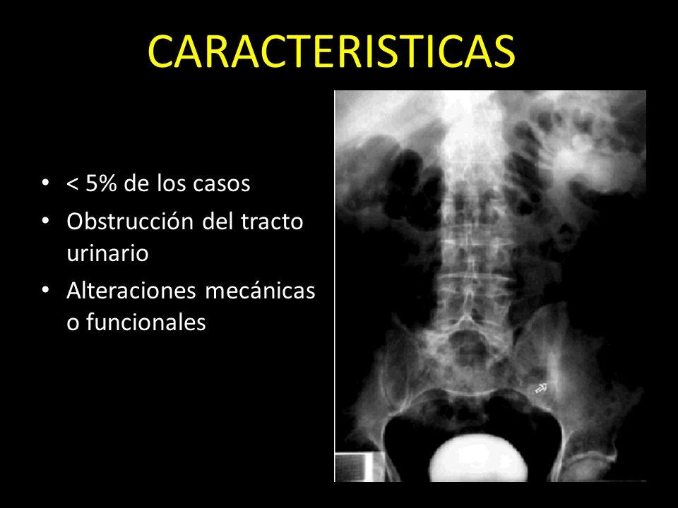 CARACTERISTICAS < 5% de los casos Obstrucción del tracto urinario Alteraciones mecánicas o funcionales