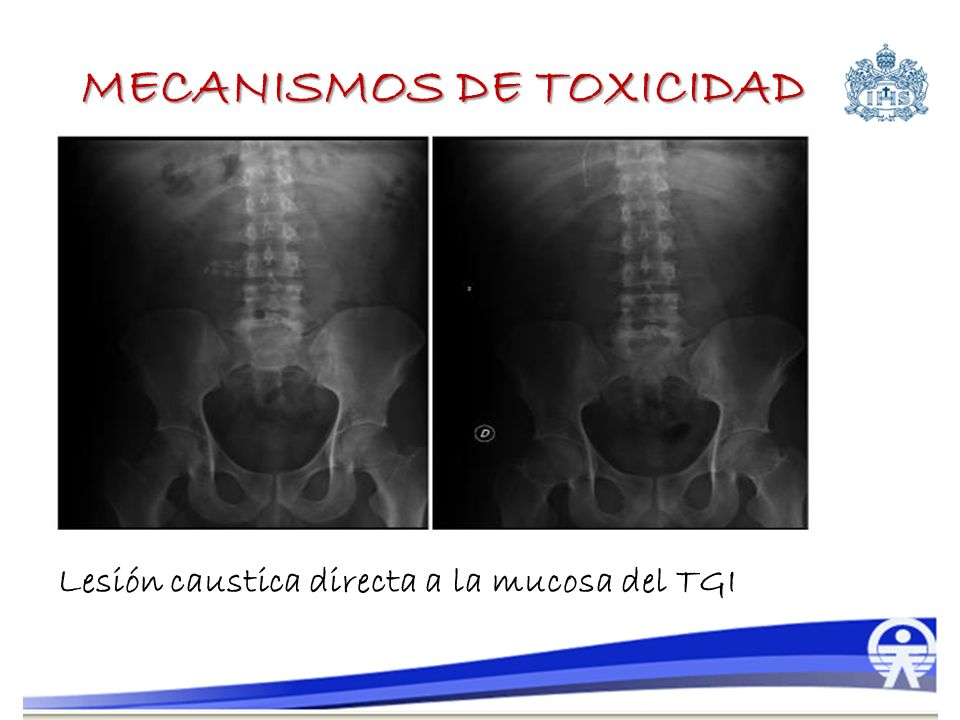 MECANISMOS DE TOXICIDAD Lesión caustica directa a la mucosa del TGI