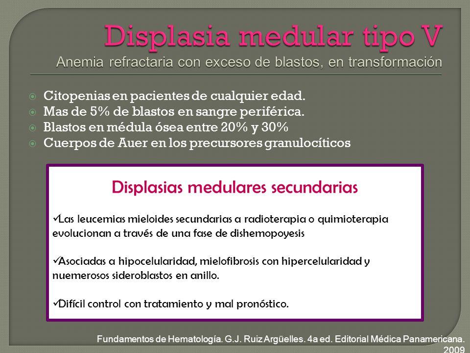 Citopenias en pacientes de cualquier edad.Mas de 5% de blastos en sangre periférica.