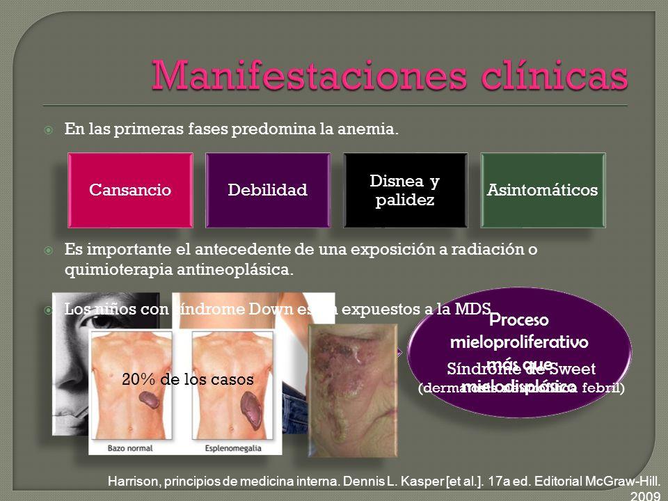 Proceso mieloproliferativo más que mielodisplásico En las primeras fases predomina la anemia.