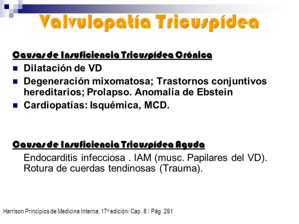 Causas de Insuficiencia Tricuspídea Crónica Dilatación de VD Degeneración mixomatosa; Trastornos conjuntivos hereditarios; Prolapso. Anomalía de Ebste