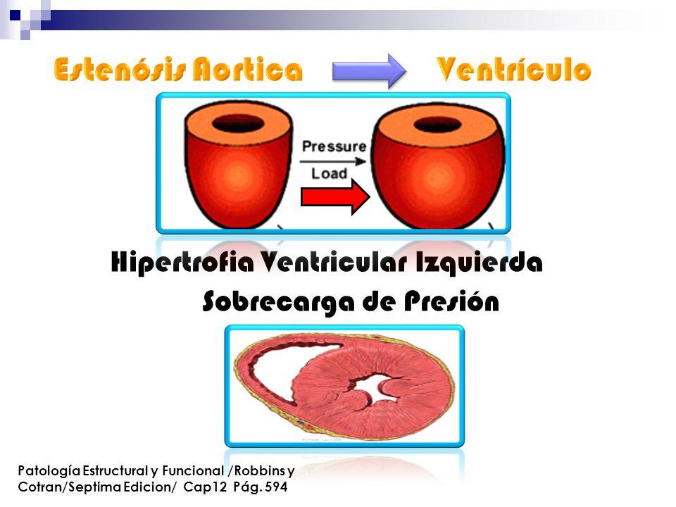 Hipertrofia Ventricular Izquierda Sobrecarga de Presión Patología Estructural y Funcional /Robbins y Cotran/Septima Edicion/ Cap12 Pág. 594