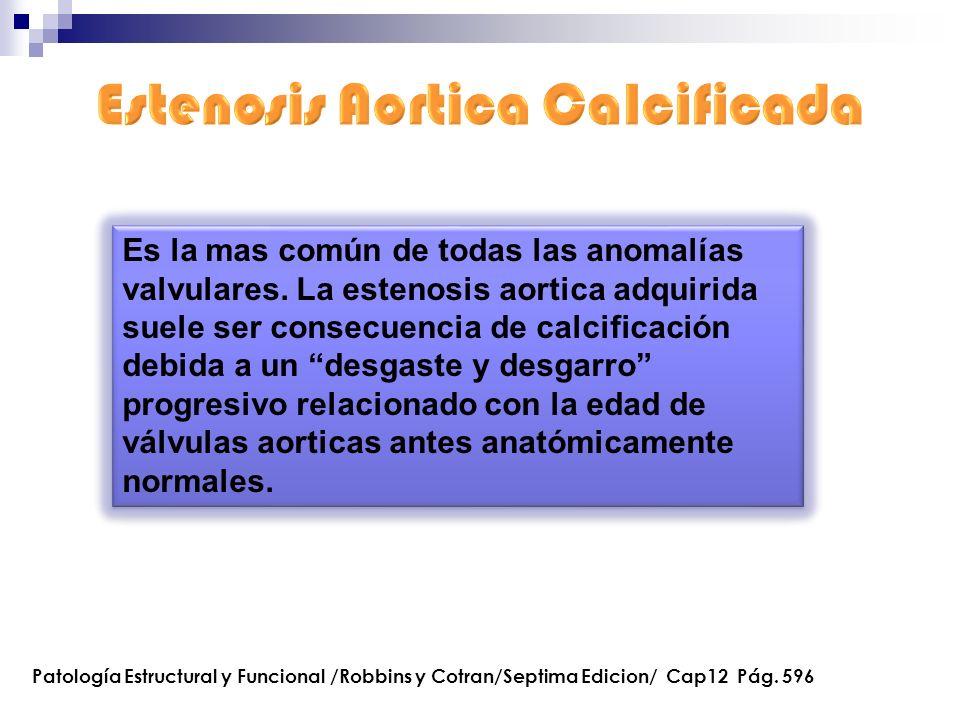 Es la mas común de todas las anomalías valvulares. La estenosis aortica adquirida suele ser consecuencia de calcificación debida a un desgaste y desga