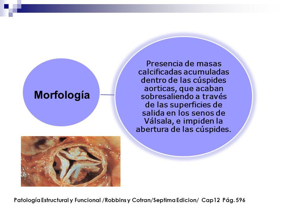 Presencia de masas calcificadas acumuladas dentro de las cúspides aorticas, que acaban sobresaliendo a través de las superficies de salida en los seno