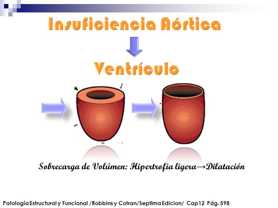 Sobrecarga de Volúmen: Hipertrofia ligera Dilatación Patología Estructural y Funcional /Robbins y Cotran/Septima Edicion/ Cap12 Pág. 598