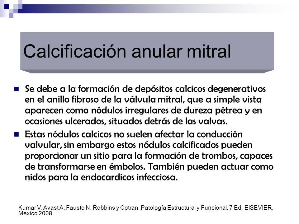 Se debe a la formación de depósitos calcicos degenerativos en el anillo fibroso de la válvula mitral, que a simple vista aparecen como nódulos irregul