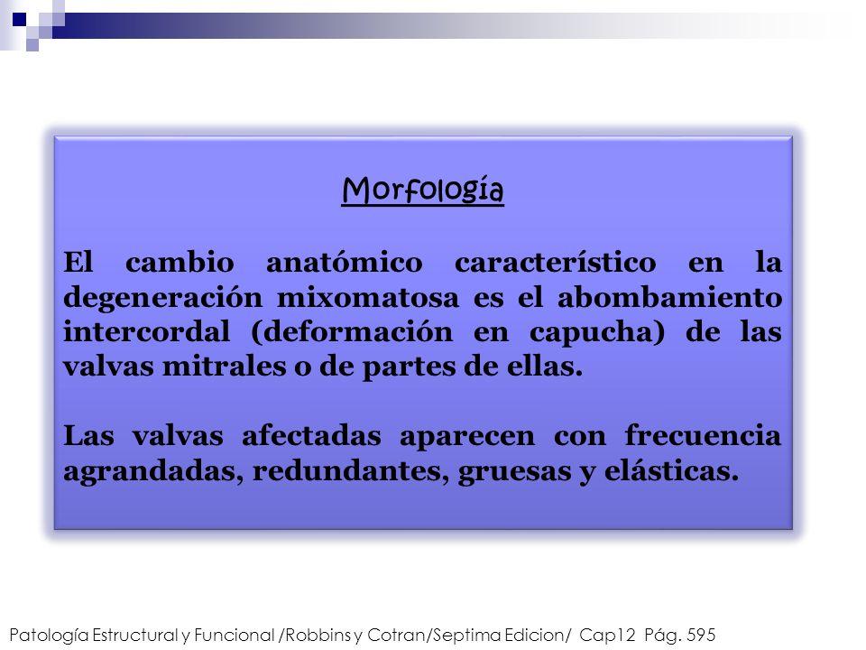 Morfología El cambio anatómico característico en la degeneración mixomatosa es el abombamiento intercordal (deformación en capucha) de las valvas mitr