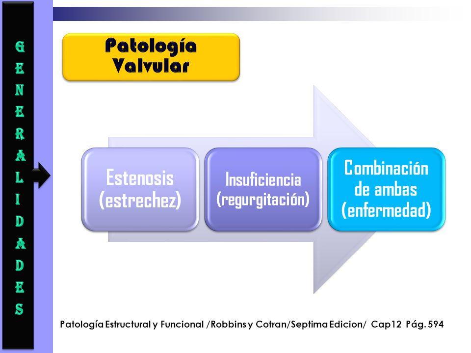 Estenosis (estrechez) Insuficiencia (regurgitación) Combinación de ambas (enfermedad) Patología Estructural y Funcional /Robbins y Cotran/Septima Edic