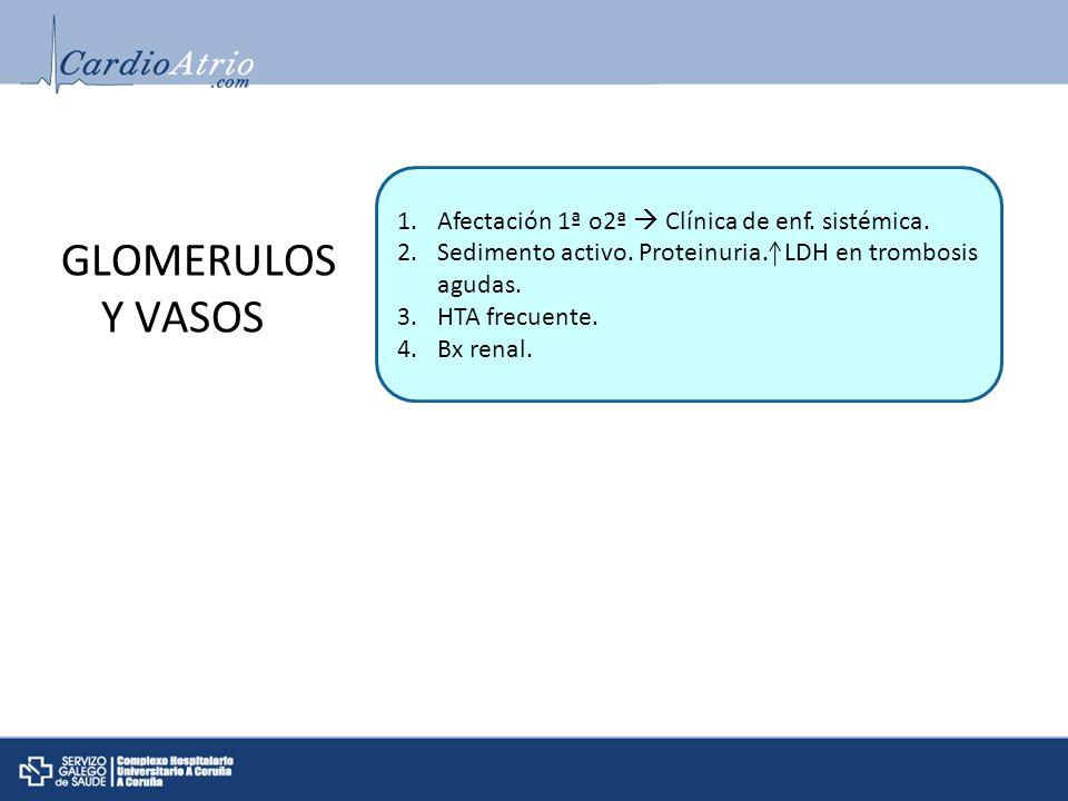 GLOMERULOS Y VASOS 1.Afectación 1ª o2ª Clínica de enf. sistémica. 2.Sedimento activo. Proteinuria. LDH en trombosis agudas. 3.HTA frecuente. 4.Bx rena