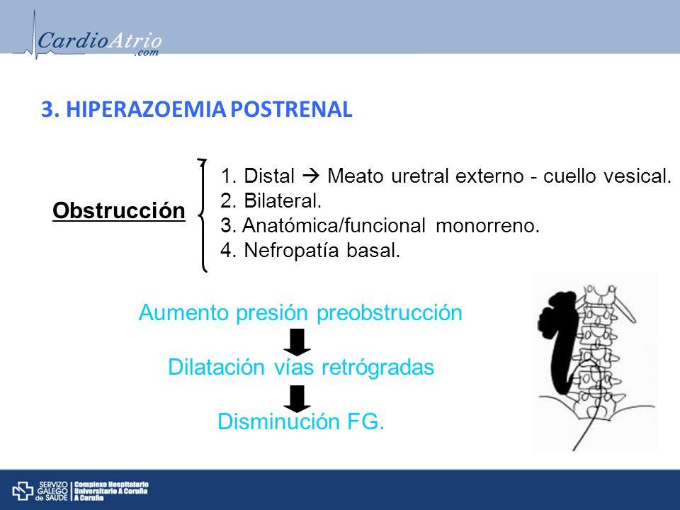 3. HIPERAZOEMIA POSTRENAL Obstrucción 1. Distal Meato uretral externo - cuello vesical. 2. Bilateral. 3. Anatómica/funcional monorreno. 4. Nefropatía