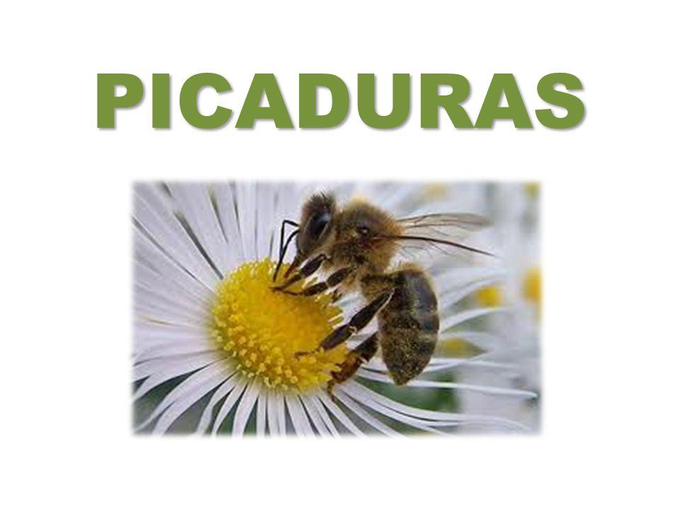 Picaduras de mosquito :