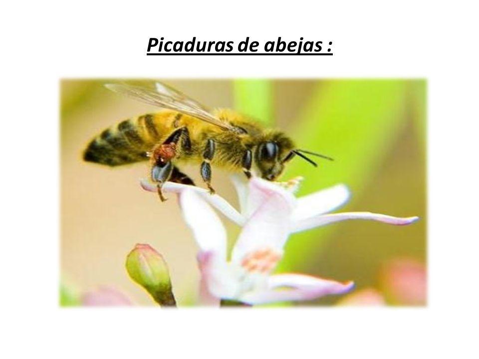 Esta es la forma que presenta una picadura de abeja.